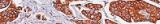 Coloration de Ziehl-Neelsen